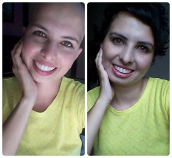 quimioterapia câncer de mama 1 ano